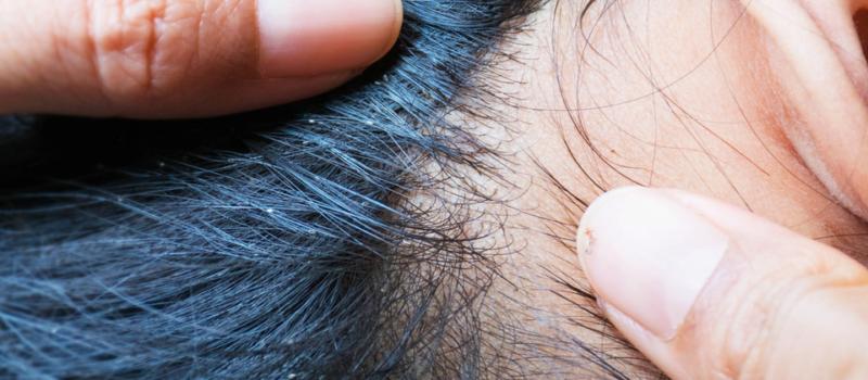 nadmierne wypadanie włosów leczenie